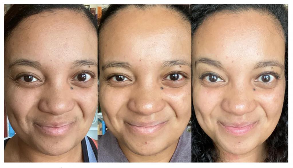 self care image of ISKRA skin care results